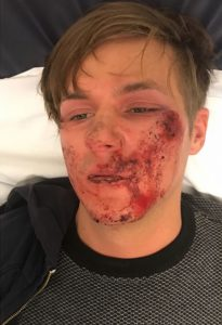 Alleged homophobic attack leaves man with severe facial injuries